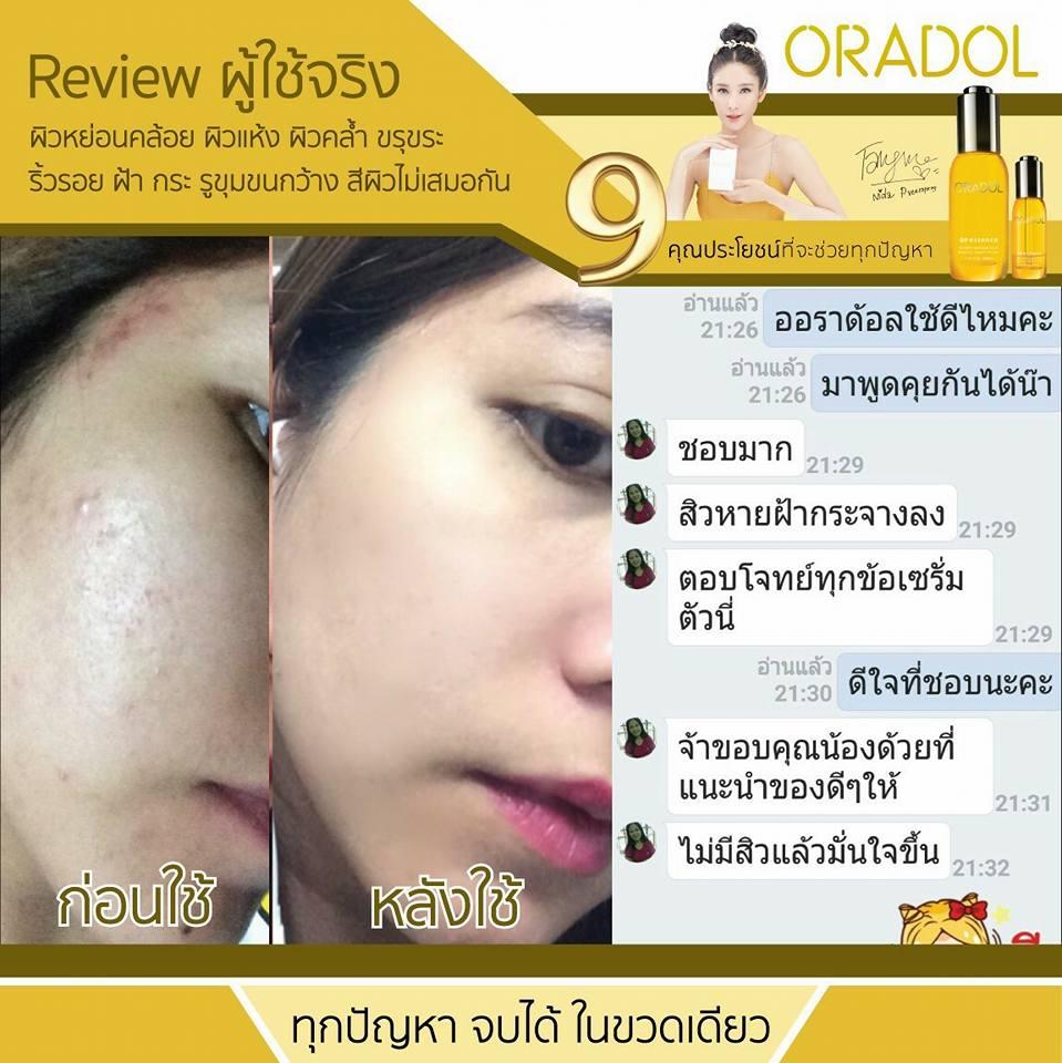 review oradol