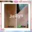 Pure Underarm cream by Jellys ครีมรักแร้เจลลี่ ตัวเดียวจบทุกปัญหาใต้วงแขน thumbnail 3