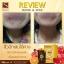SKINISTA Rose Bueing โรเซ่ บูอิ้ง Anti-Oxi Rose Gummy Vitamins วิตามินแบบเคี้ยว thumbnail 16